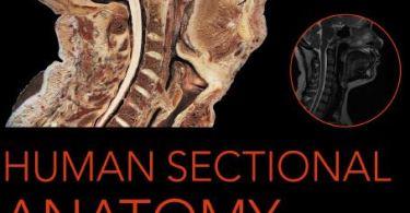 Human Sectional Anatomy 4th Edition PDF