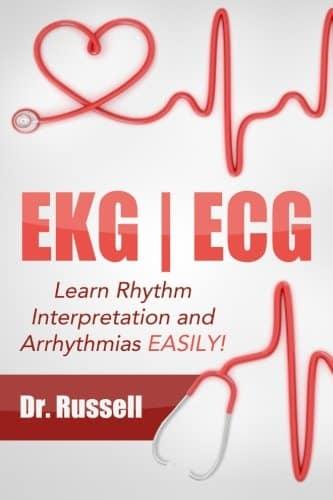 EKG / ECG: Learn Rhythm Interpretation and Arrhythmias Easily