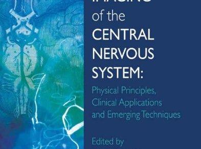 Vascular Imaging of the Central Nervous System PDF