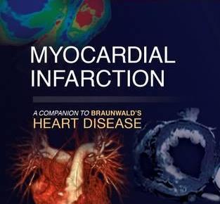 Myocardial Infarction PDF