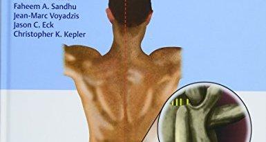 Controversies in Spine Surgery MIS versus OPEN