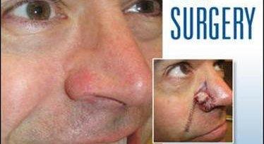 facial flaps surgery 1st edition pdf