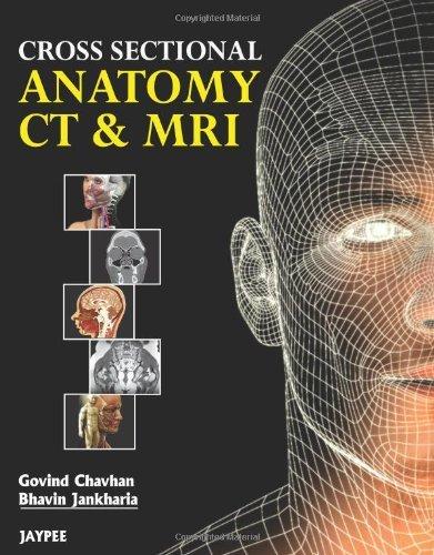 Cross Sectional Anatomy CT & MRI PDF Free Download