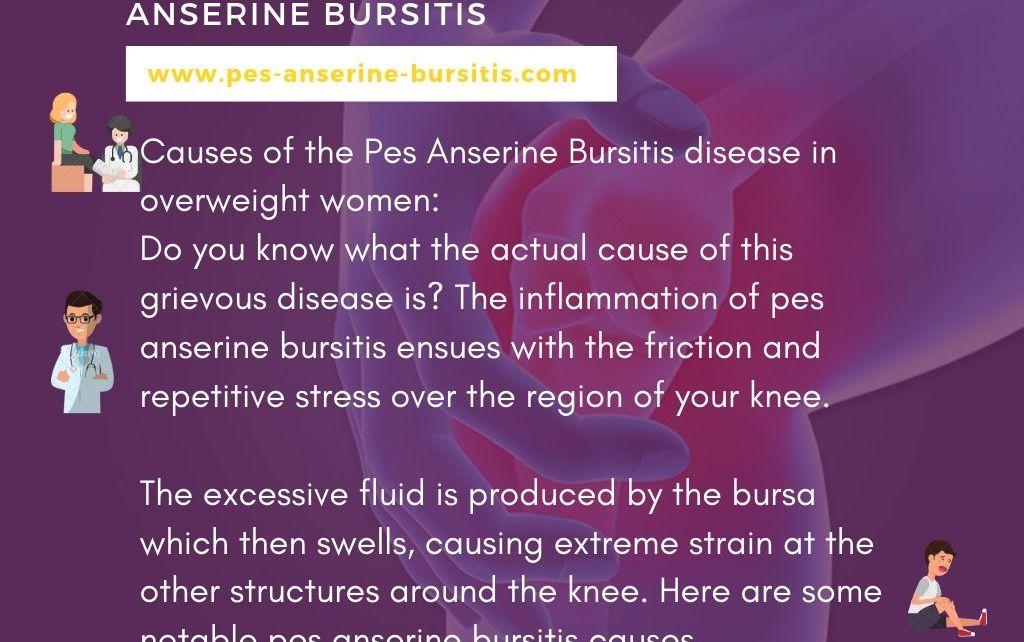 Pes Anserine Bursitis