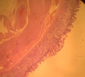 Normal Stomach Histology