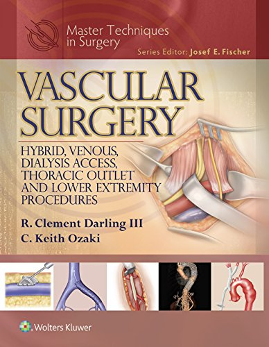 Master Techniques in Surgery: Vascular Surgery: Hybrid, Venous, Dialysis Access, Thoracic Outlet, and Lower Extremity Procedures (EPUB)