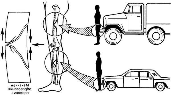 Automobile injury in a collision front surface of the car