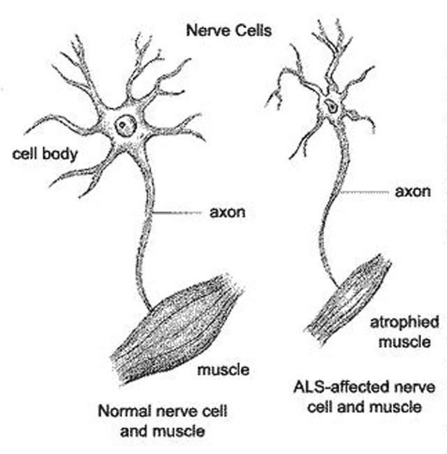 Upper Motor Neuron Lesion Disease, Damage, Signs, Causes