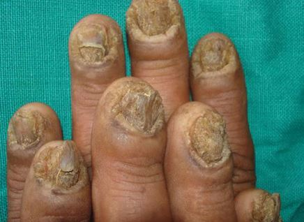 Onychomycosis  Treatment Pictures Causes Symptoms