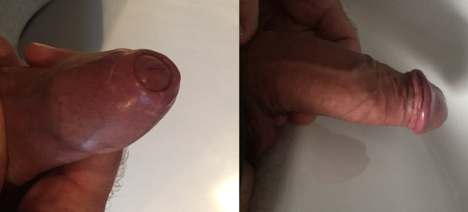 Phimosis stretching | Tight Foreskin Images | Phimosis Cure