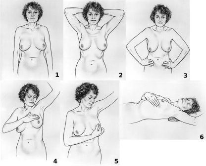 how to examine your breasts
