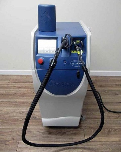 Candela Mini GentleLASE Laser Hair Removal Machine
