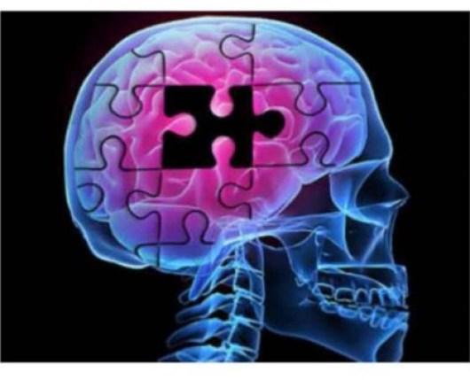 болезнь Альцгеймера, ЛПВП, ЛПНП, амилоидные бляшки