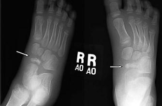стопа, ладьевидный, рентгенография