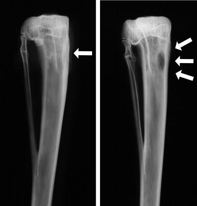 сустав, кость, деформация, остеомиелит, бедренный, большеберцовый, тазобедренный