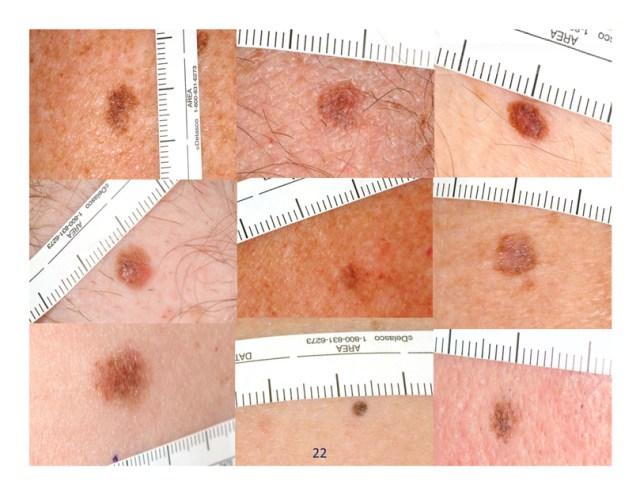 рак кожи, меланома