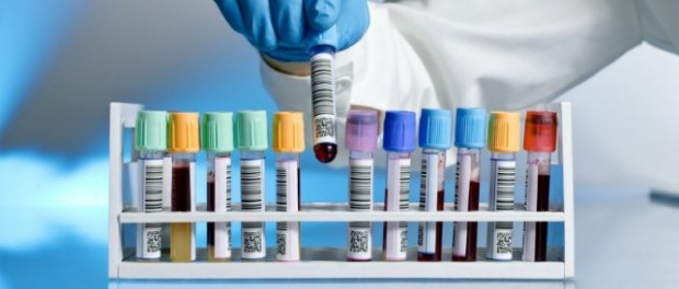 остеоартрит, ревматоидный артрит, анализ крови