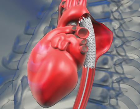 Оперативное лечение аневризмы восходящего отдела аорты