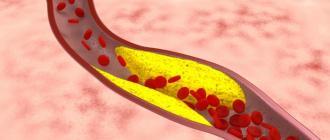 Атеросклероз,воспалительные заболевания,травматическое повреждение иятрогенное повреждение как факторы рискааневризм аорты
