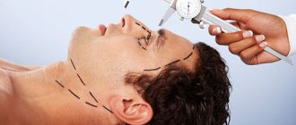 головной мозг, пластические операции