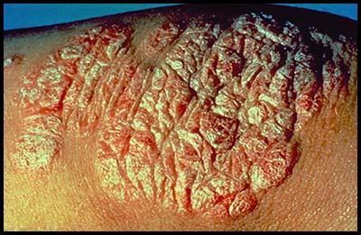 Состояние гепатобилиарного тракта у пациентов с псориазом
