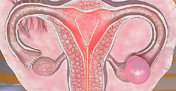 апоплексии яичника