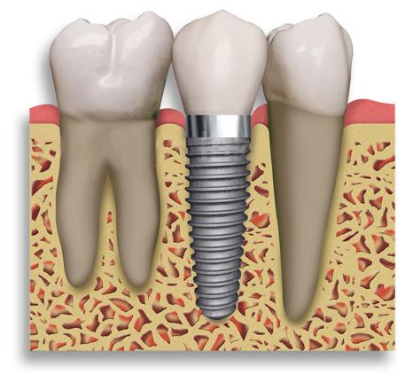 зубная имплантация, пластика челюсти