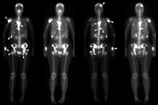 рак молочной железы, кость