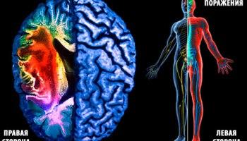 белок, инсульт