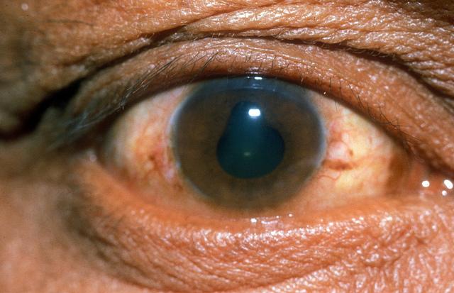 микрофлора кишечника, заболевания глаз