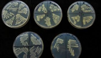 Никотиновая зависимость, бактерии,
