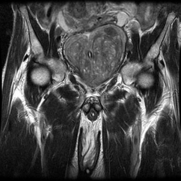 метастазы, рак предстательной железы