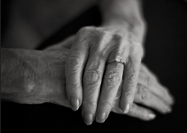 деменция, болезнь Альцгеймера