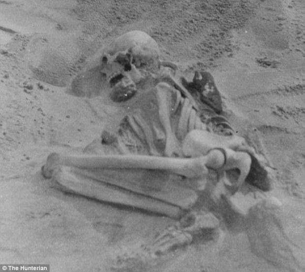 рахит, скелет