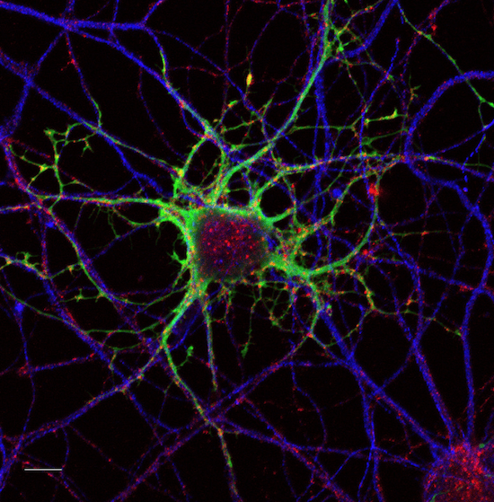 мутации, нейроны