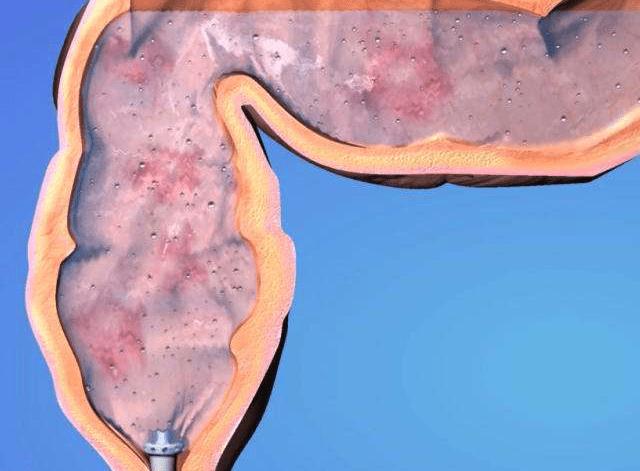 ультразвук, желудочно-кишечный тракт