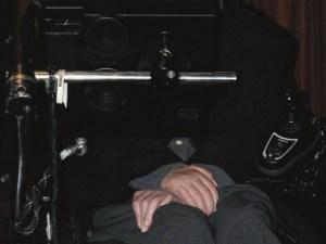болезнь Лу Герига, БАС, боковой амиотрофический склероз