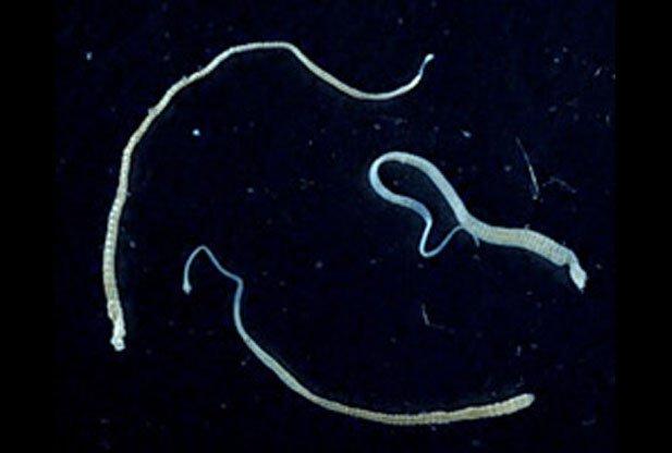 опухоль, ленточные черви, гименолепидоз, Карликовый солитер