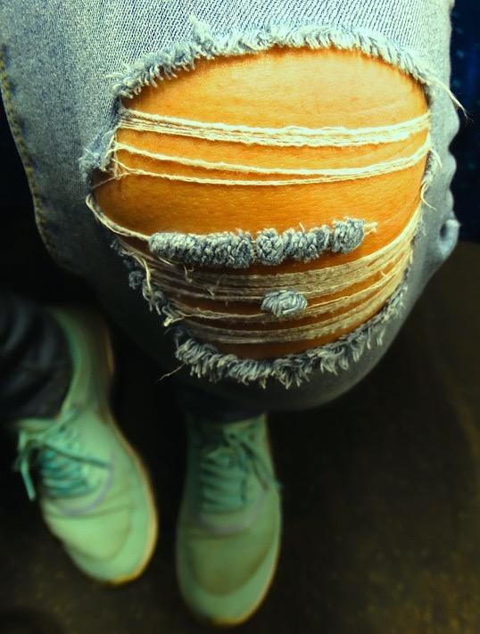 ожирение, потеря веса, хрящ, коленный сустав, остеоартрит