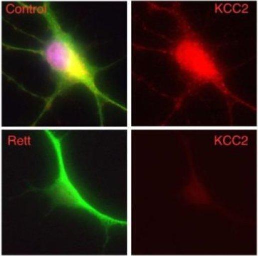 аутизм, синдром Ретта, PNAS, KCC2, MECP2, ГАМК
