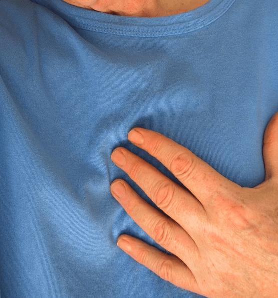 Инфаркт миокарда, женщины, Circulation