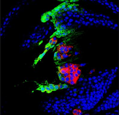 хромосомы, анеуплоидные клетки, Developmental Cell, анеуплоидия
