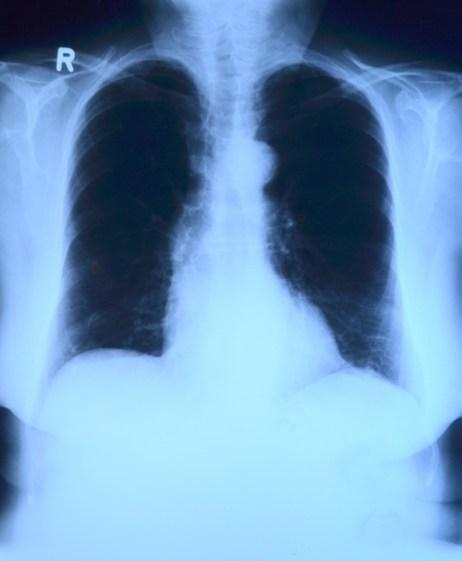 легкое, курение, зима, дыхательная инфекция, Plos ONE