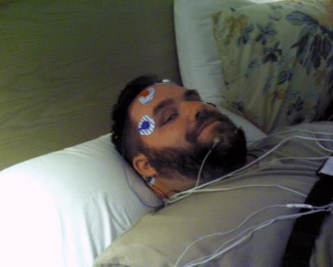 PLoS One, инсульт, сон, тромбоз,