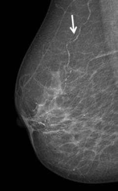 маммография, сердечно-сосудистые заболевания,