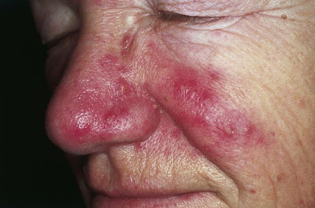 розацеа, болезнь Альцгеймера, Dermatology