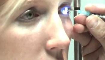 ген, дистрофия роговицы, Ophthalmology