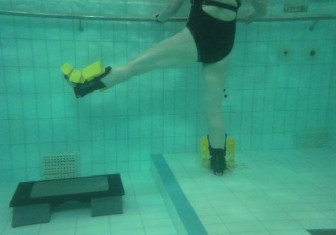 артроз коленного сустава,