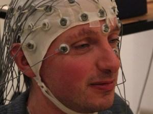 эпилепсия, Scientific Reports