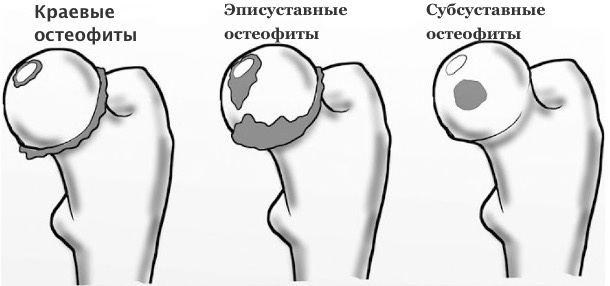 остеофиты, вертлужная впадина,